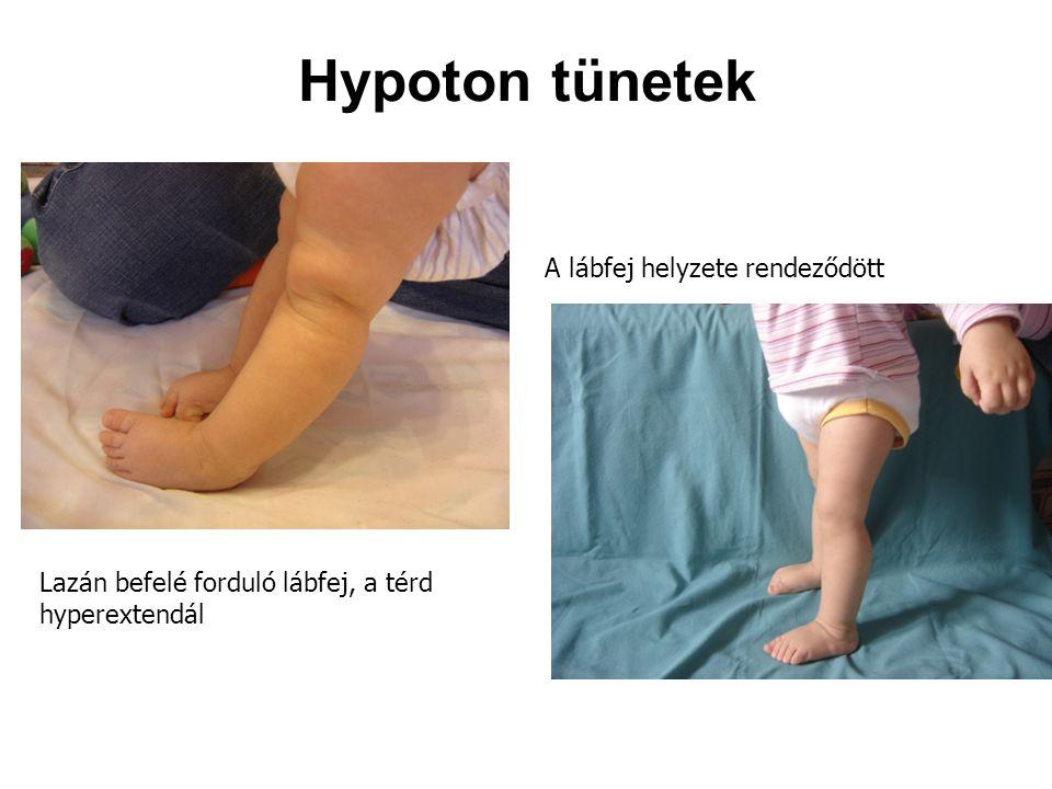 Hypoton tünetek A lábfej helyzete rendeződött
