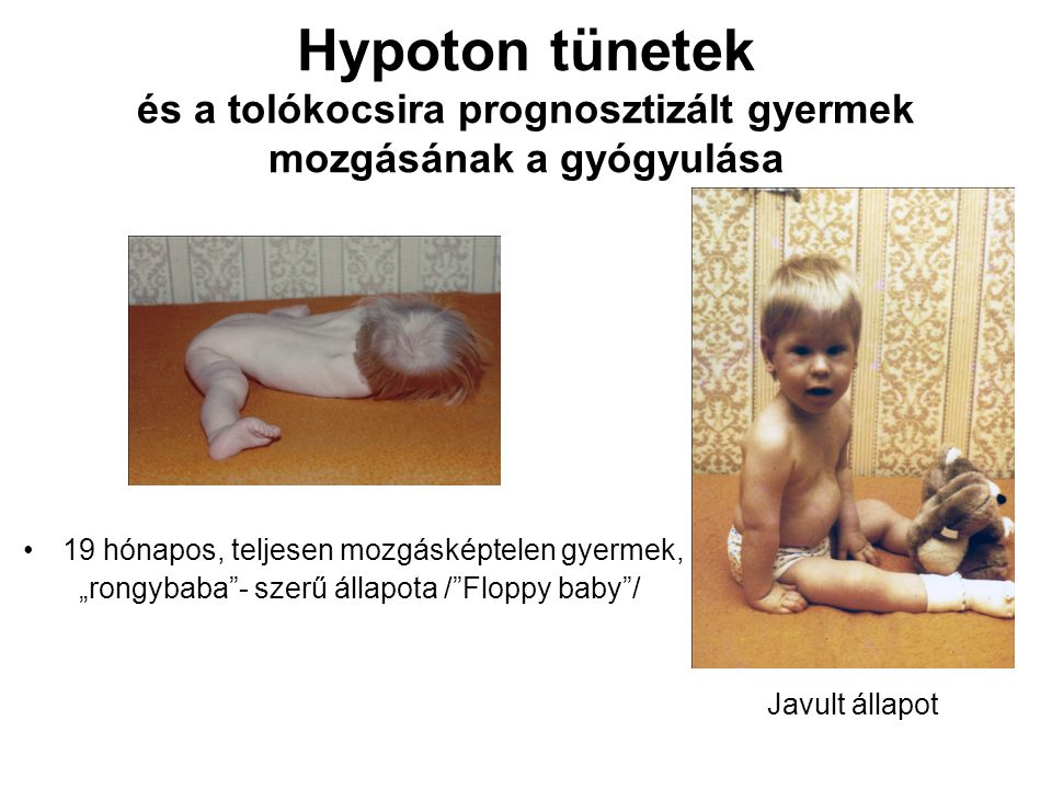 Hypoton tünetek és a tolókocsira prognosztizált gyermek mozgásának a gyógyulása