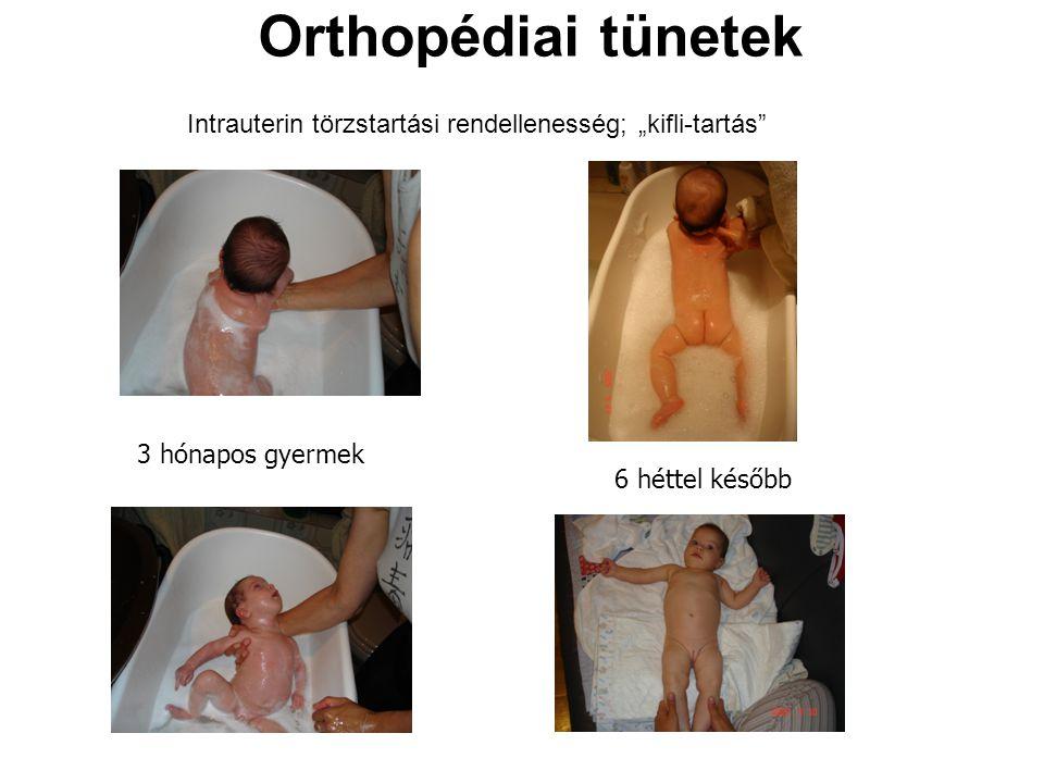 """Orthopédiai tünetek Intrauterin törzstartási rendellenesség; """"kifli-tartás 3 hónapos gyermek."""