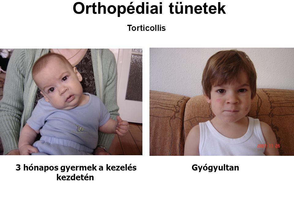 Orthopédiai tünetek Torticollis 3 hónapos gyermek a kezelés kezdetén