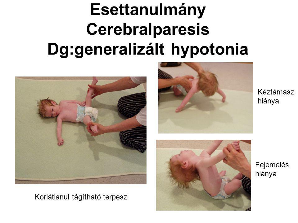 Esettanulmány Cerebralparesis Dg:generalizált hypotonia