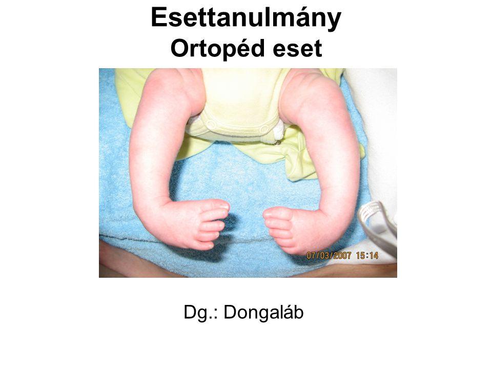 Esettanulmány Ortopéd eset