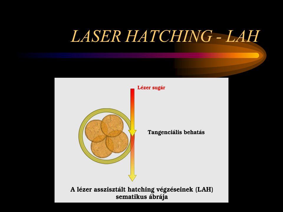LASER HATCHING - LAH