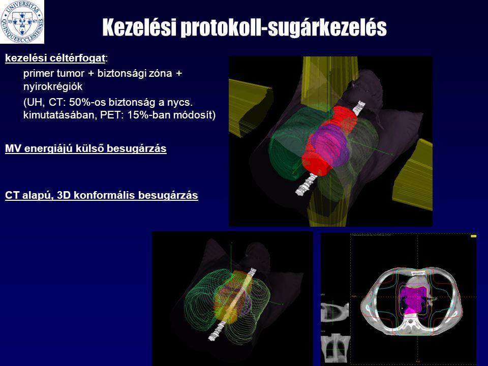 Kezelési protokoll-sugárkezelés