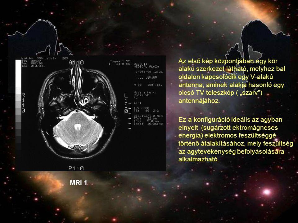 """Az első kép központjában egy kör alakú szerkezet látható, melyhez bal oldalon kapcsolódik egy V-alakú antenna, aminek alakja hasonló egy olcsó TV teleszkóp ( """"szarv ) antennájához."""