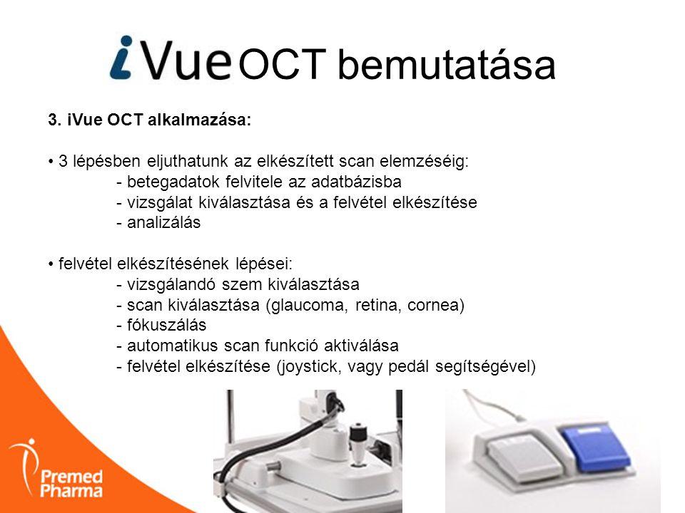 OCT bemutatása 3. iVue OCT alkalmazása: