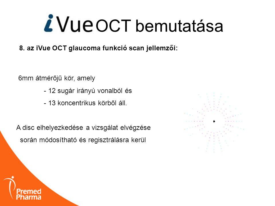OCT bemutatása 8. az iVue OCT glaucoma funkció scan jellemzői: