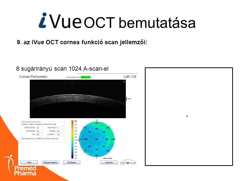 OCT bemutatása 9. az iVue OCT cornea funkció scan jellemzői: