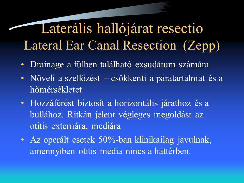 Laterális hallójárat resectio Lateral Ear Canal Resection (Zepp)