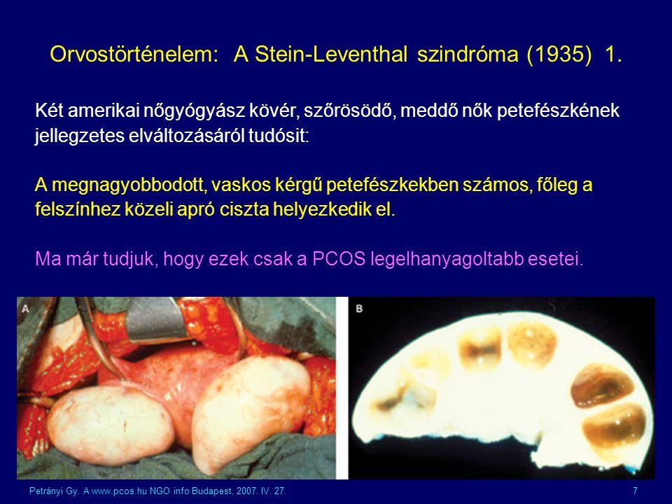 Orvostörténelem: A Stein-Leventhal szindróma (1935) 1.