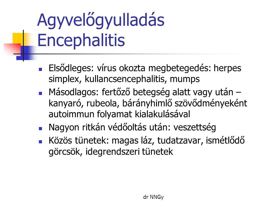 Agyvelőgyulladás Encephalitis