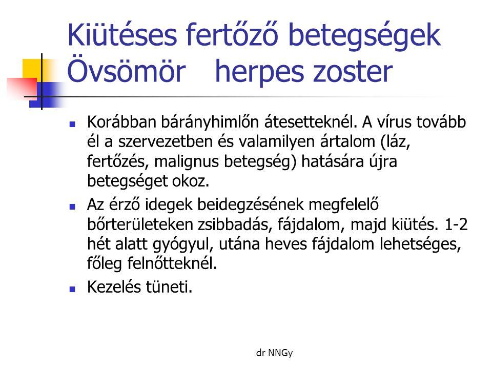 Kiütéses fertőző betegségek Övsömör herpes zoster