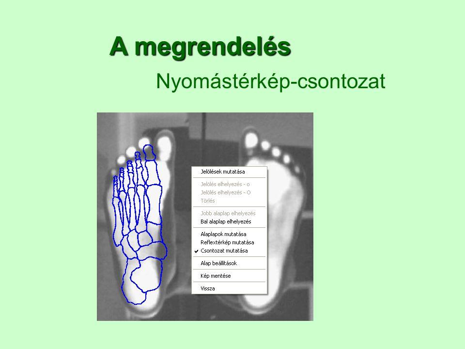 A megrendelés Nyomástérkép-csontozat 2017.04.04.