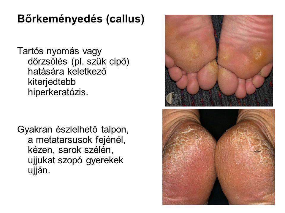 Bőrkeményedés (callus)