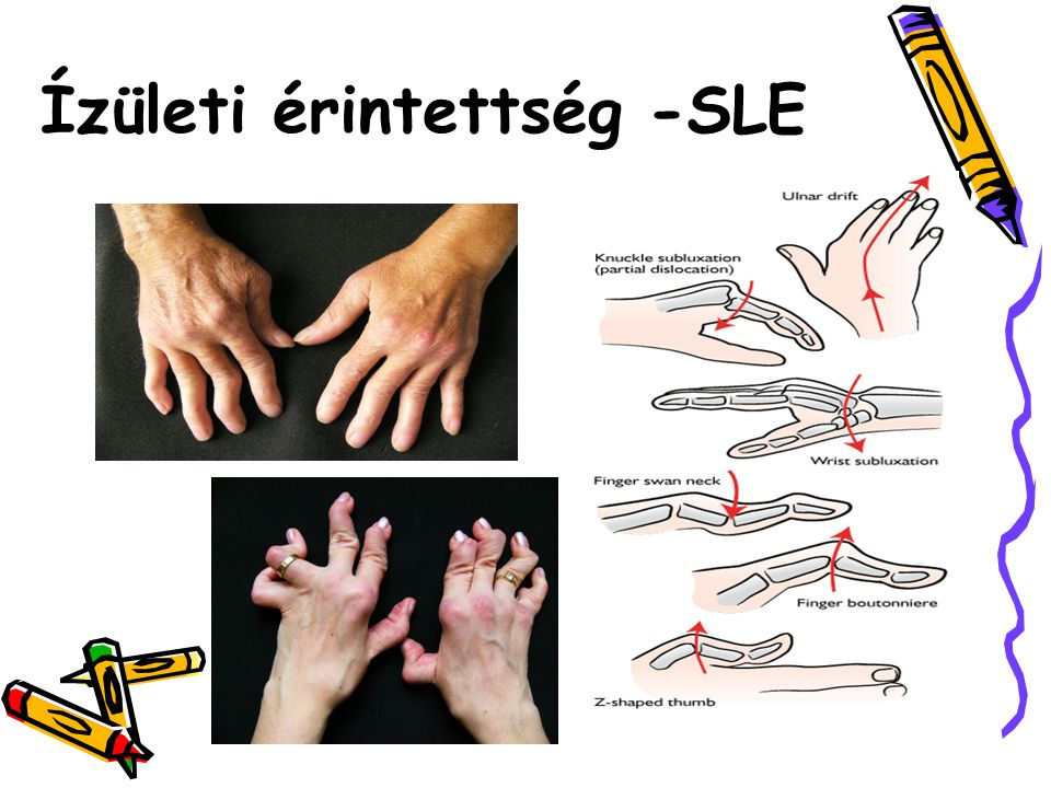 Ízületi érintettség -SLE