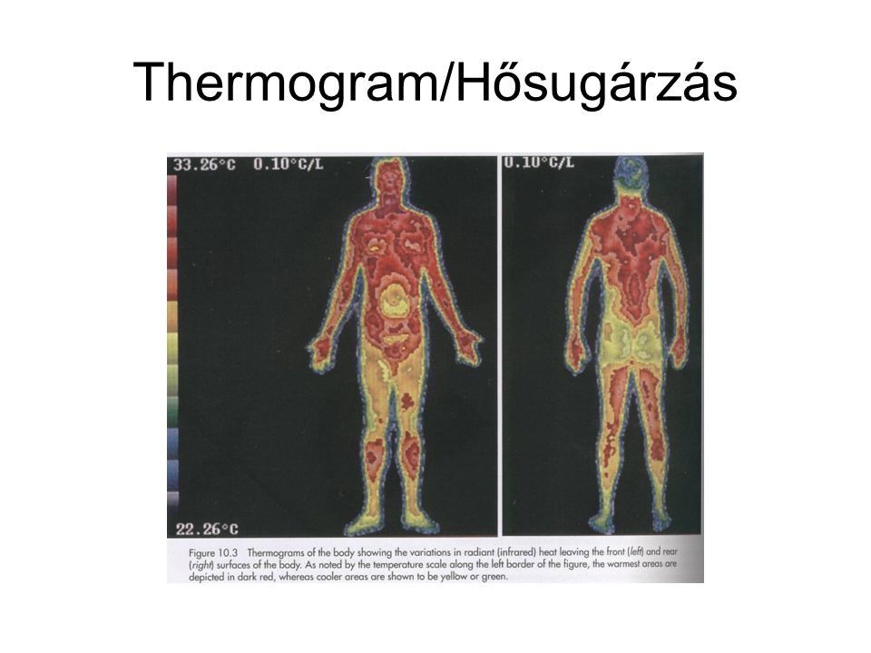 Thermogram/Hősugárzás