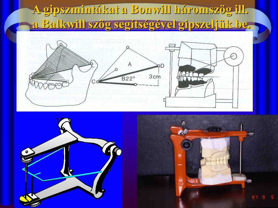 A gipszmintákat a Bonwill háromszög ill