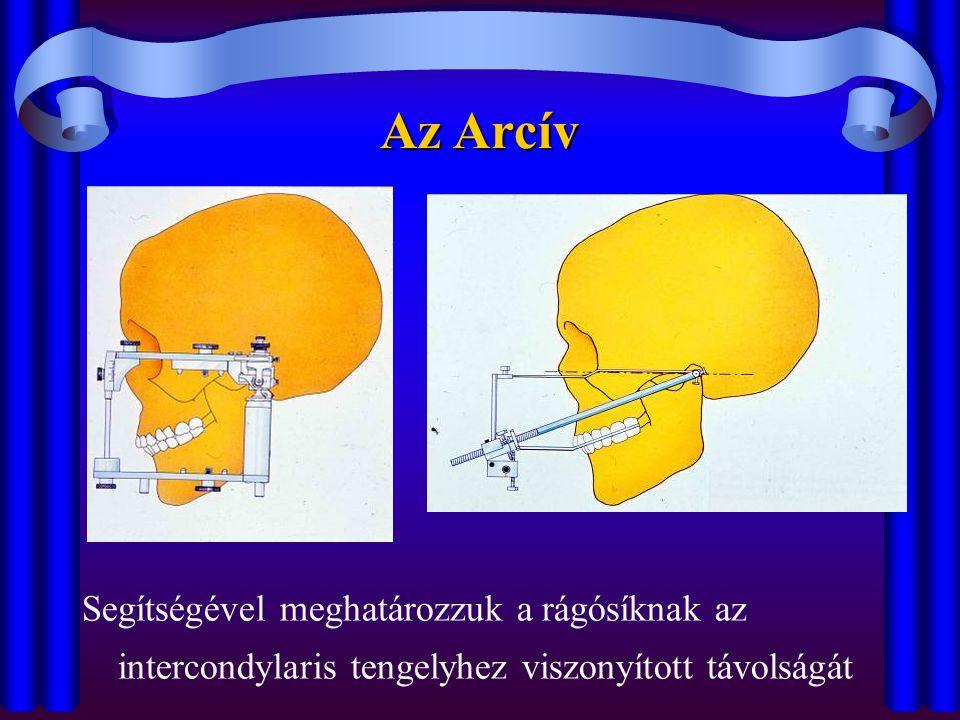 Az Arcív Segítségével meghatározzuk a rágósíknak az intercondylaris tengelyhez viszonyított távolságát.