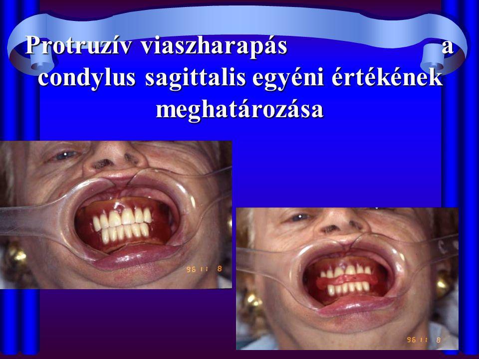 Protruzív viaszharapás a condylus sagittalis egyéni értékének meghatározása