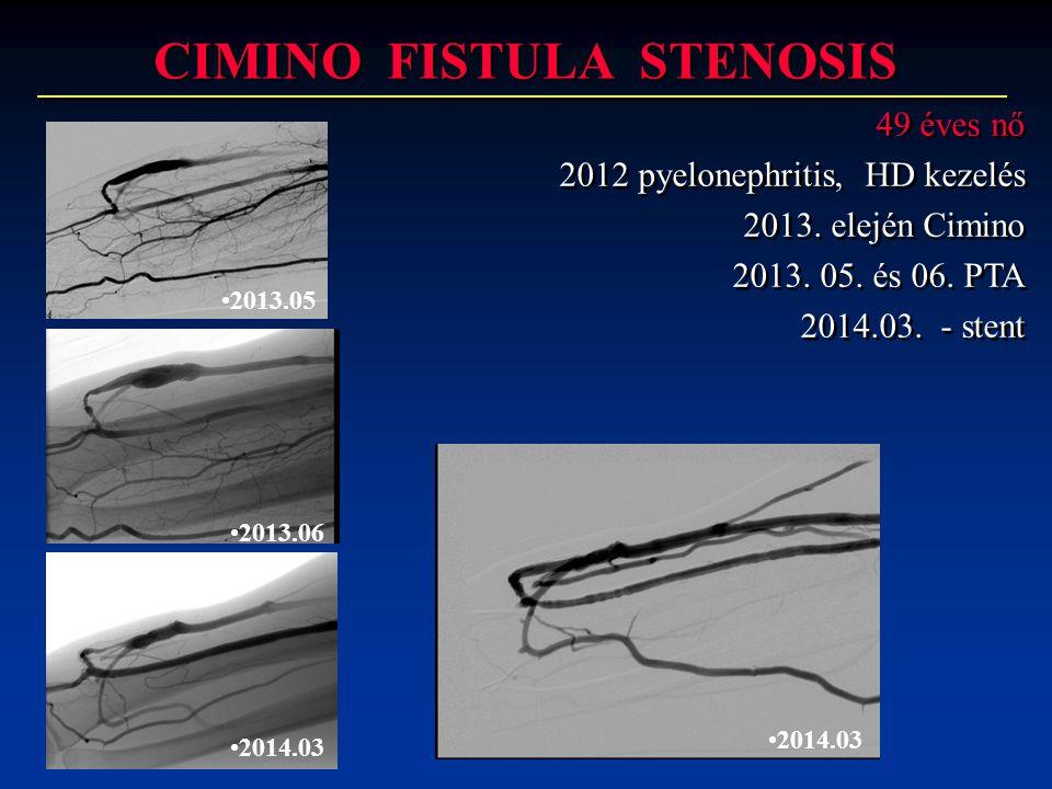 CIMINO FISTULA STENOSIS