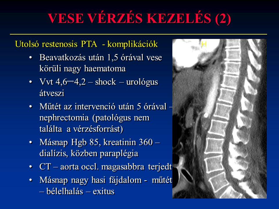 VESE VÉRZÉS KEZELÉS (2) Utolsó restenosis PTA - komplikációk