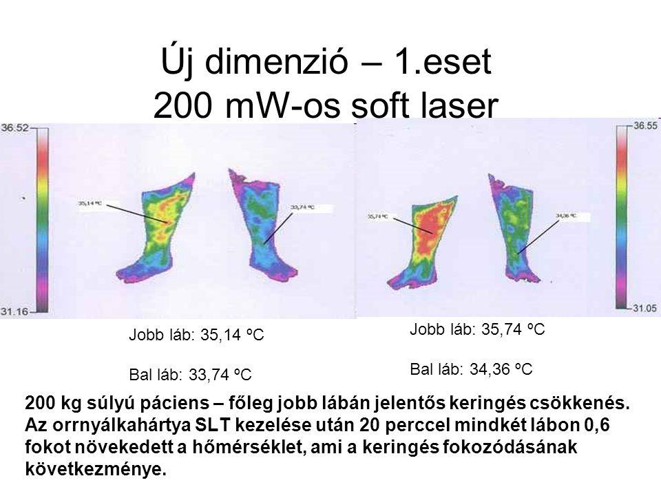 Új dimenzió – 1.eset 200 mW-os soft laser