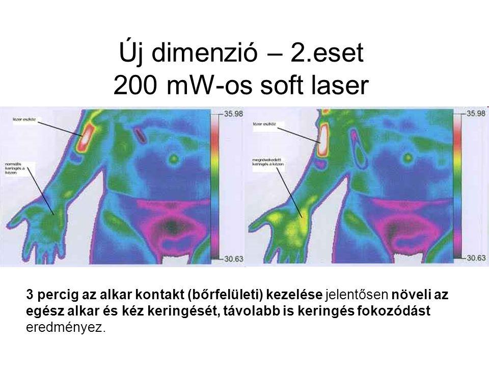 Új dimenzió – 2.eset 200 mW-os soft laser