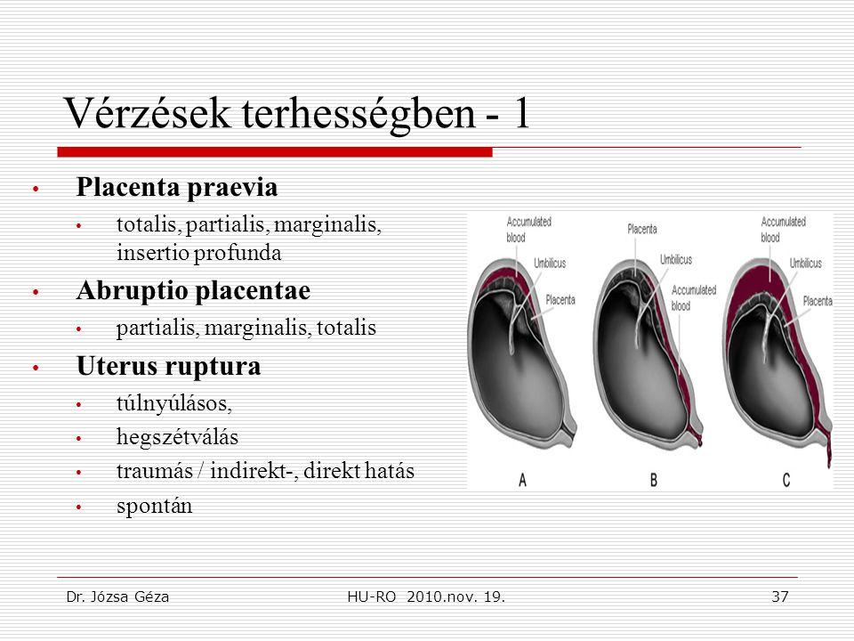 Vérzések terhességben - 1