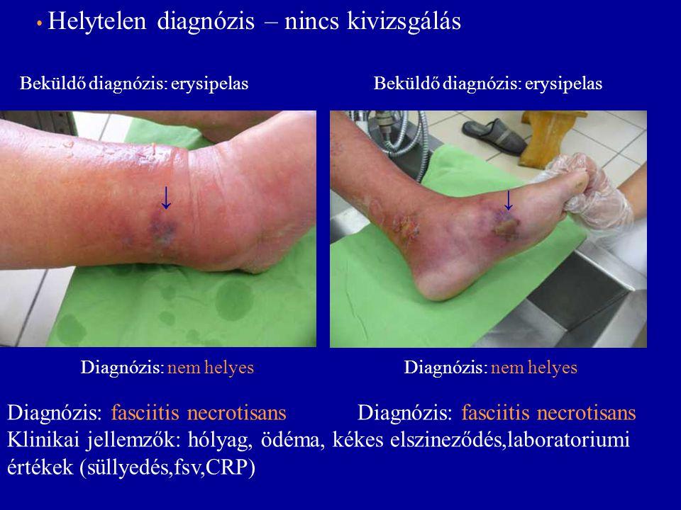 ↓ ↓ Diagnózis: fasciitis necrotisans Diagnózis: fasciitis necrotisans