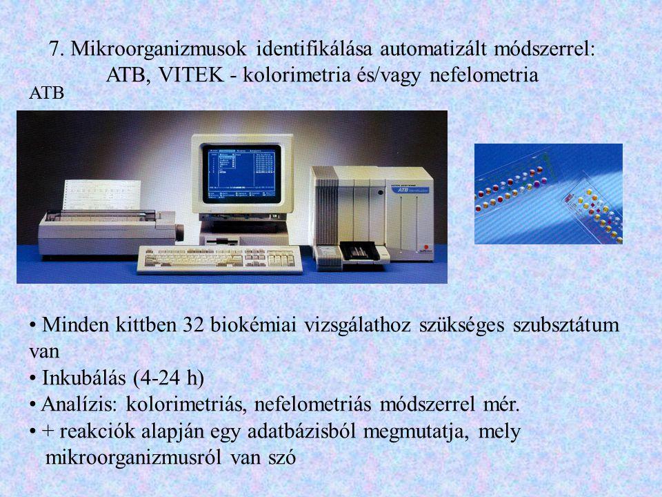 7. Mikroorganizmusok identifikálása automatizált módszerrel: