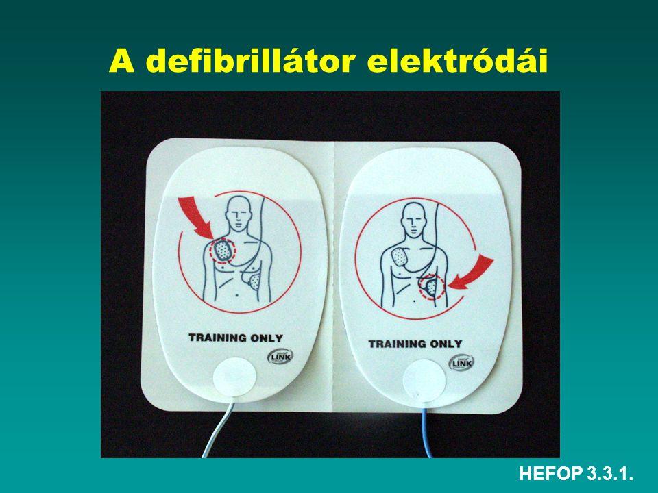 A defibrillátor elektródái