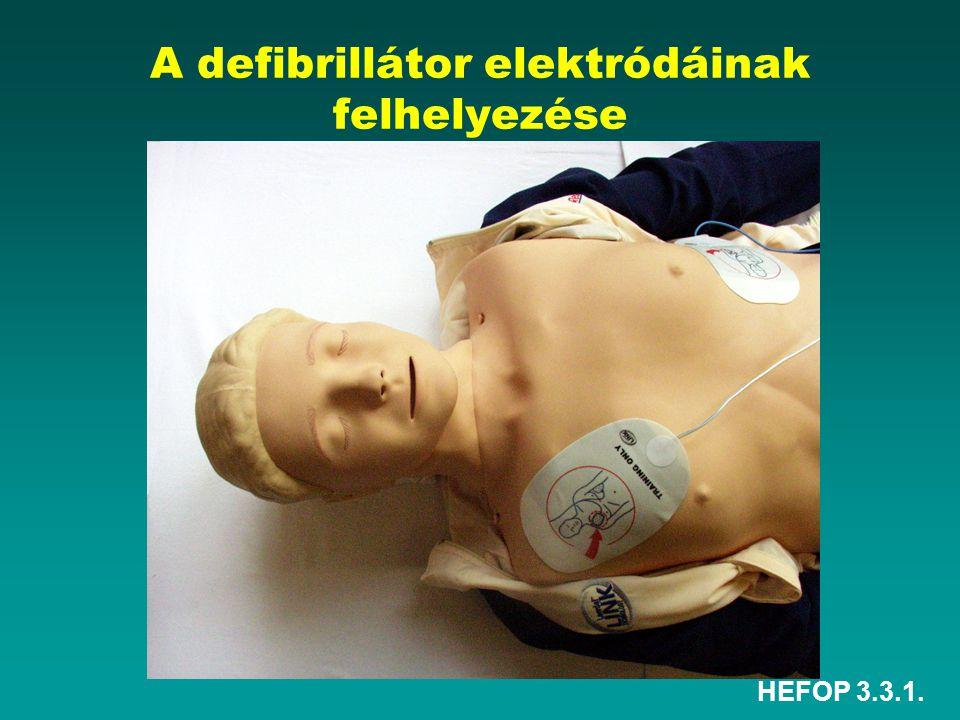 A defibrillátor elektródáinak felhelyezése