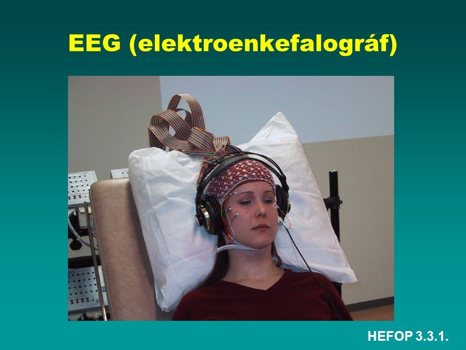EEG (elektroenkefalográf)