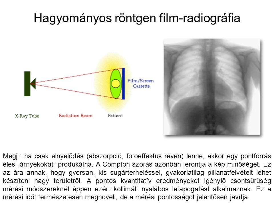 Hagyományos röntgen film-radiográfia