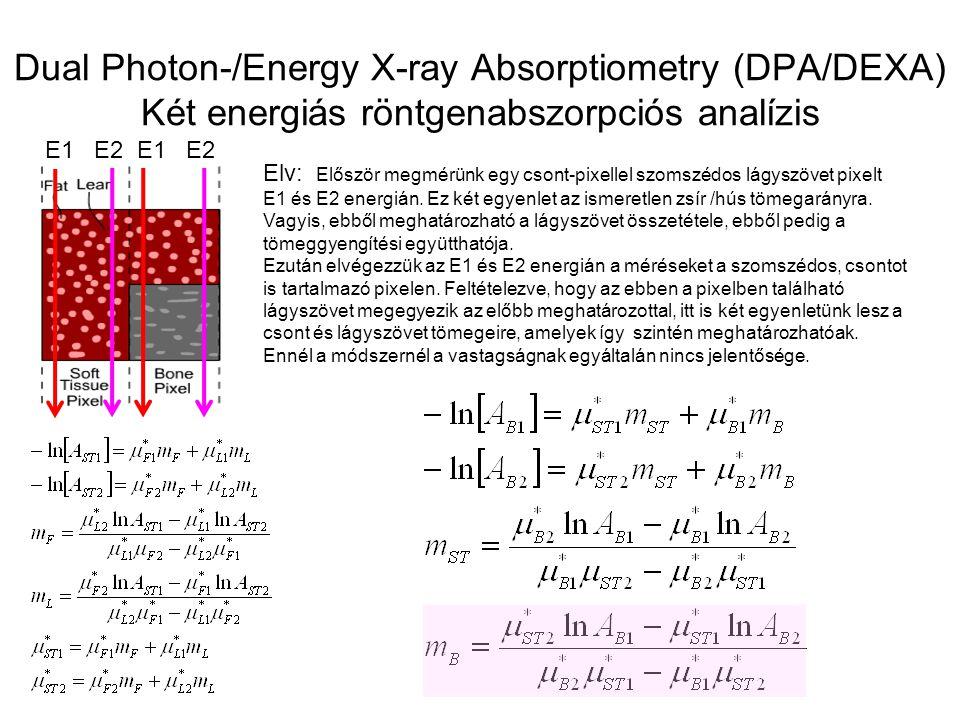 Dual Photon-/Energy X-ray Absorptiometry (DPA/DEXA) Két energiás röntgenabszorpciós analízis