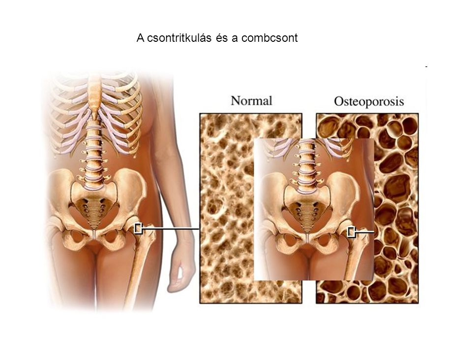 A csontritkulás és a combcsont