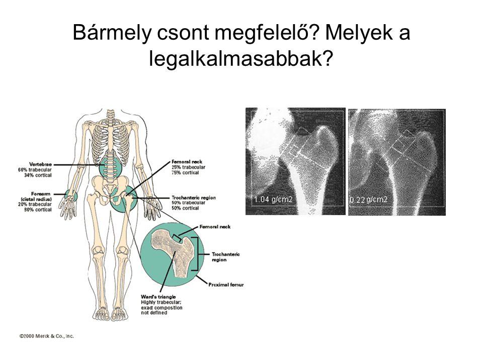 Bármely csont megfelelő Melyek a legalkalmasabbak