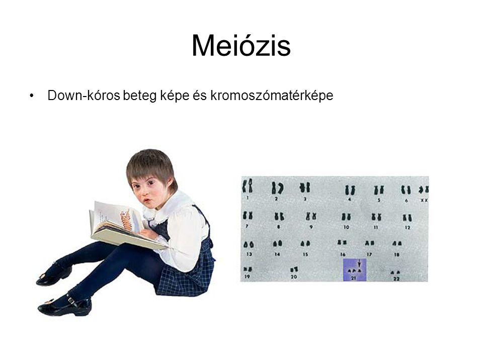 Meiózis Down-kóros beteg képe és kromoszómatérképe
