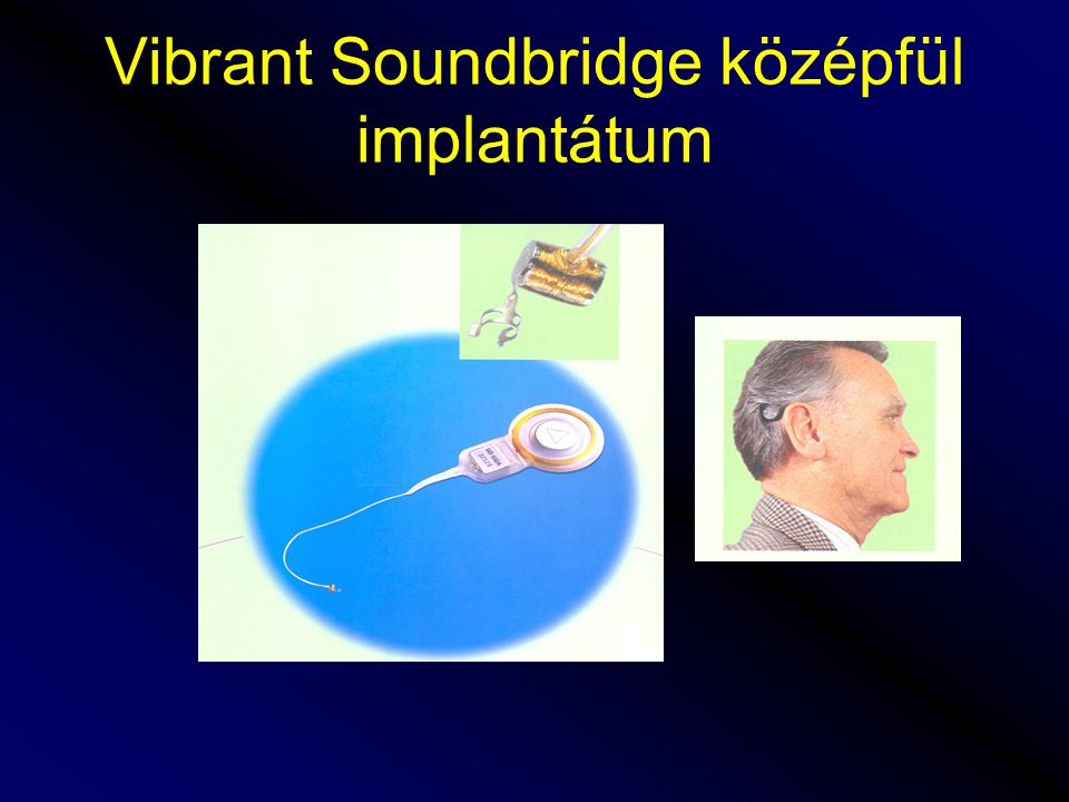 Vibrant Soundbridge középfül implantátum