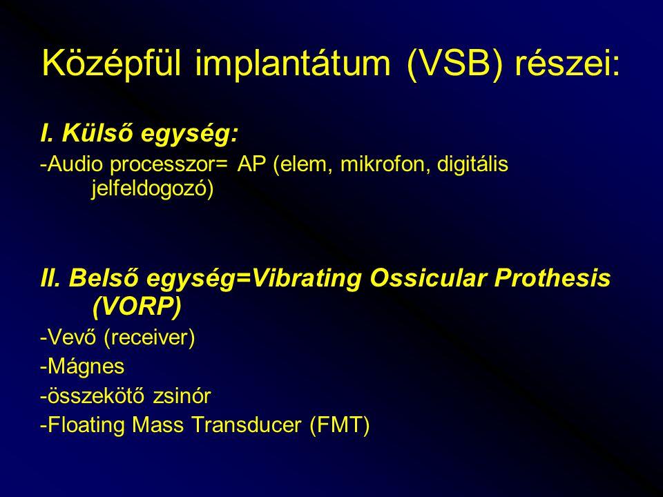 Középfül implantátum (VSB) részei: