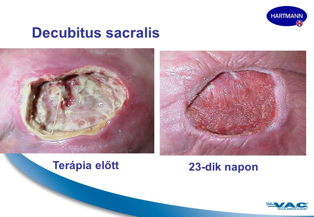 Decubitus sacralis Terápia előtt 23-dik napon