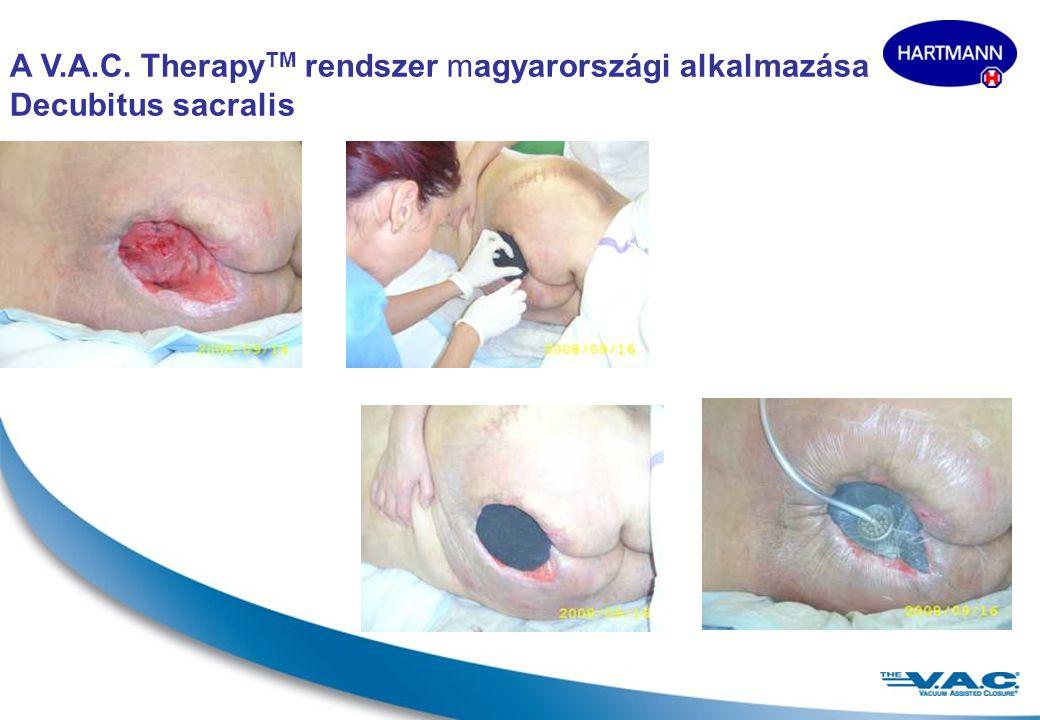 A V.A.C. TherapyTM rendszer magyarországi alkalmazása