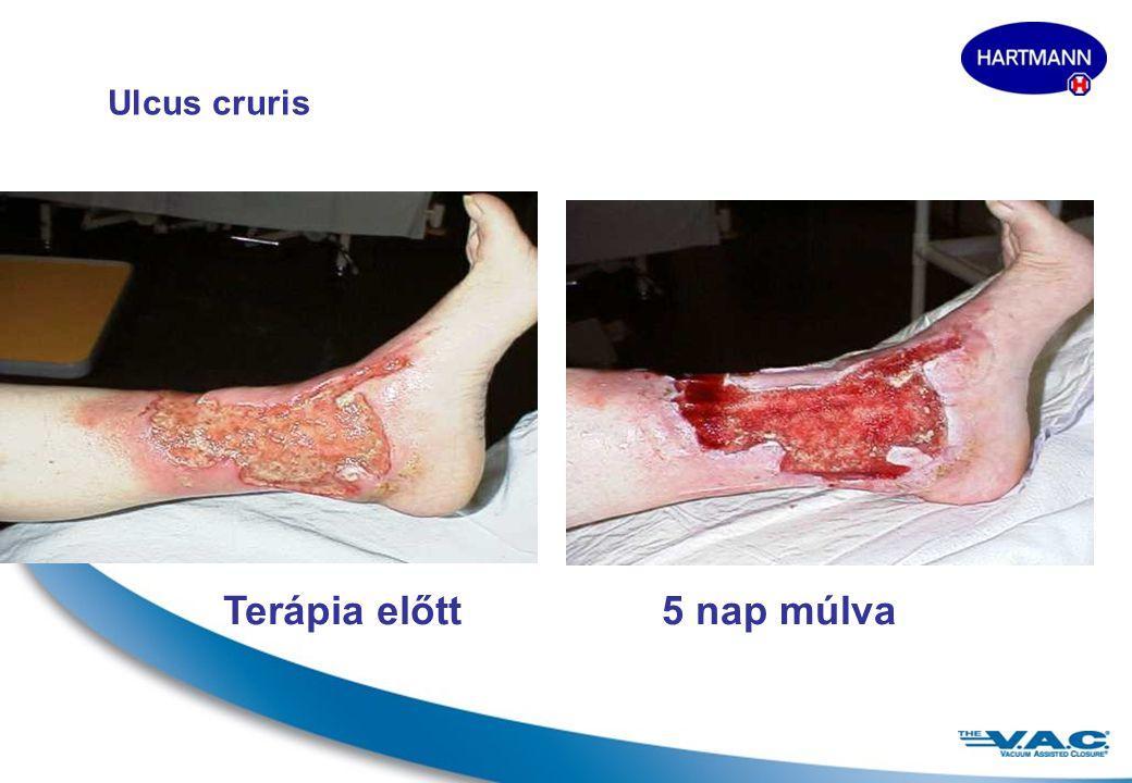 Ulcus cruris Terápia előtt 5 nap múlva