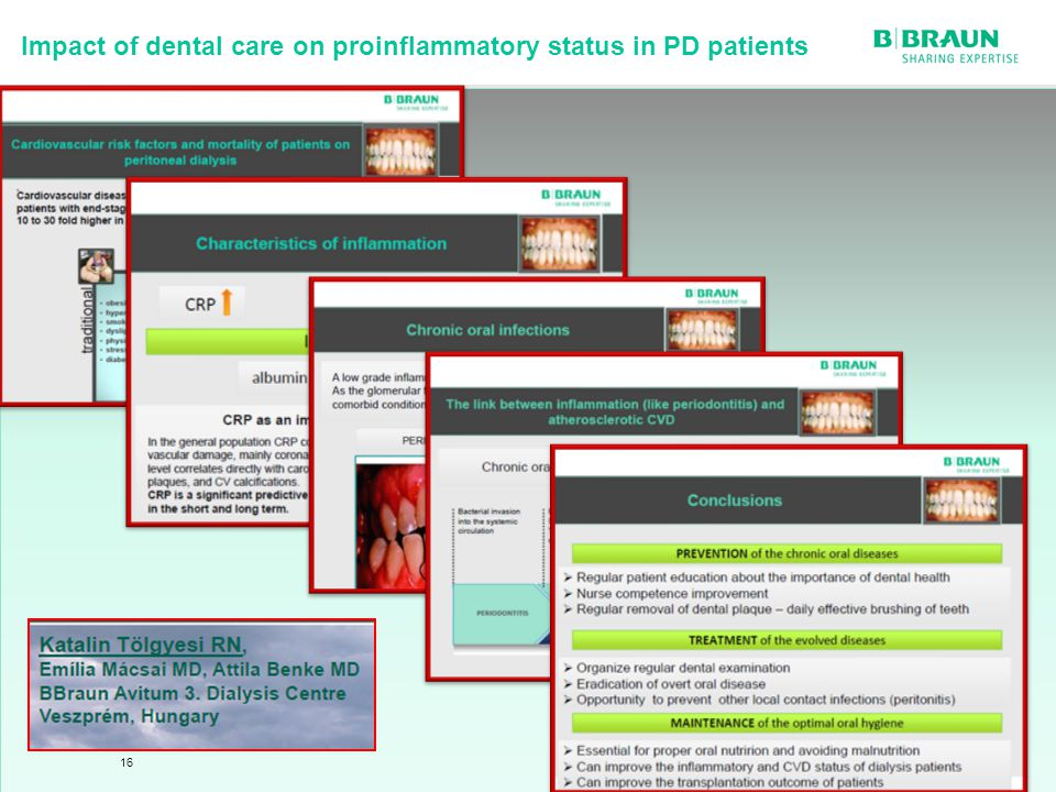 Impact of dental care on proinflammatory status in PD patients