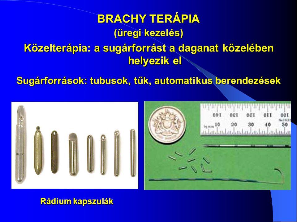 BRACHY TERÁPIA (üregi kezelés) Közelterápia: a sugárforrást a daganat közelében helyezik el. Sugárforrások: tubusok, tűk, automatikus berendezések.