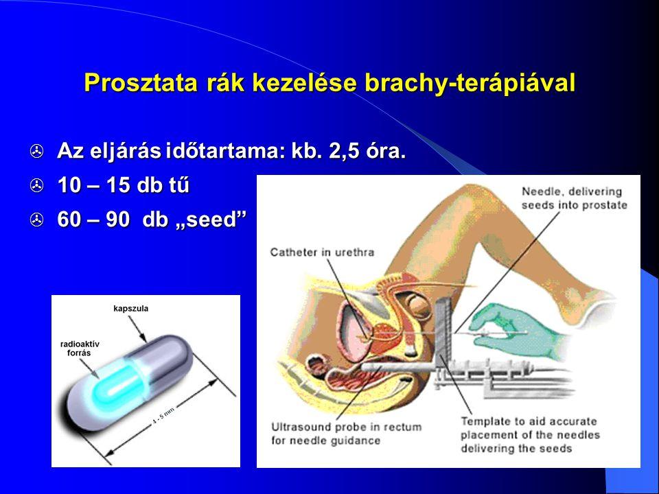 Prosztata rák kezelése brachy-terápiával
