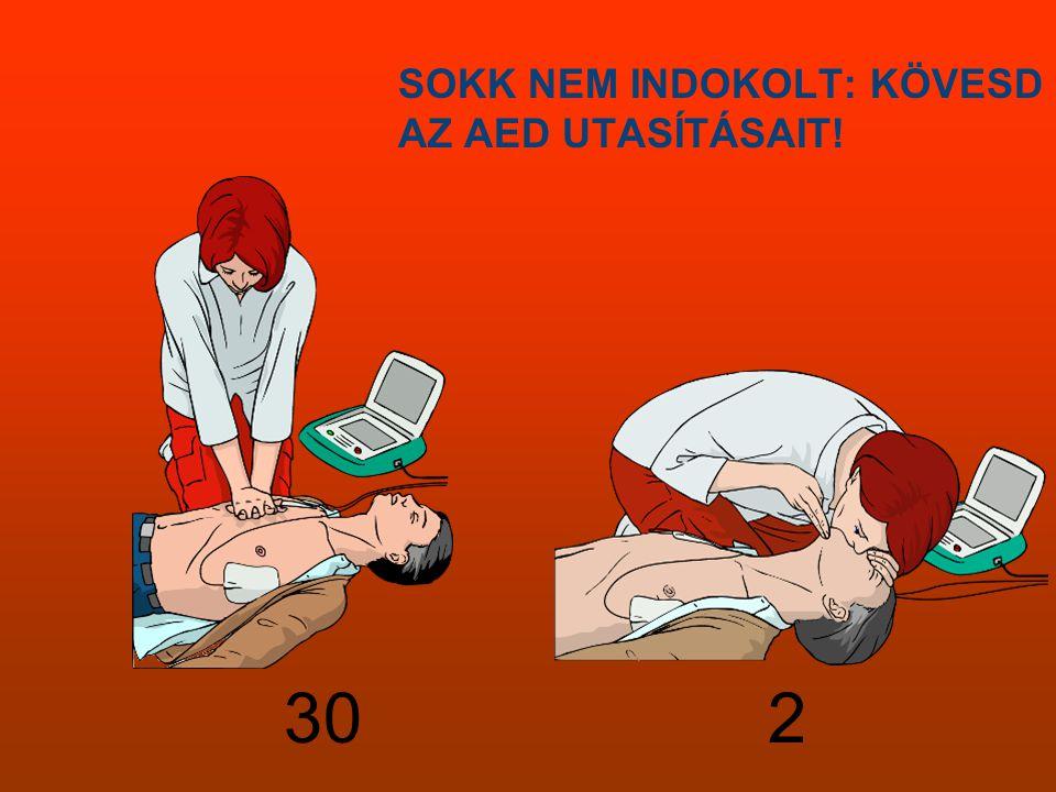 SOKK NEM INDOKOLT: KÖVESD AZ AED UTASÍTÁSAIT!