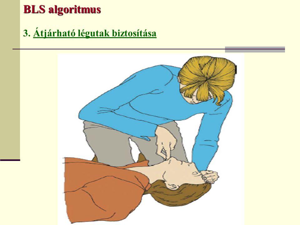 BLS algoritmus 3. Átjárható légutak biztosítása