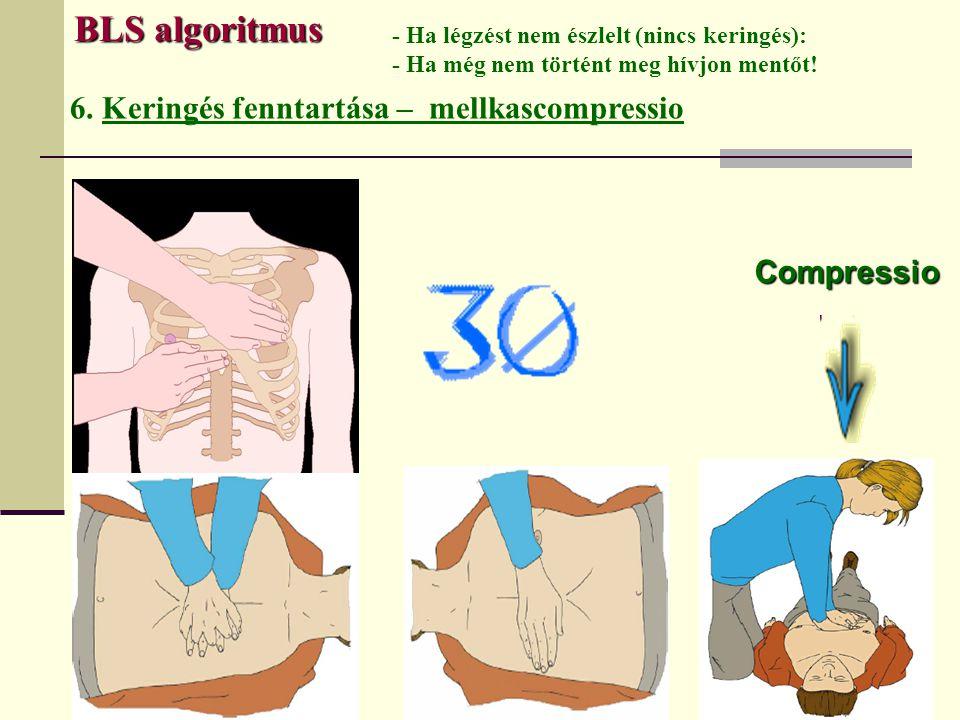 BLS algoritmus 6. Keringés fenntartása – mellkascompressio Compressio