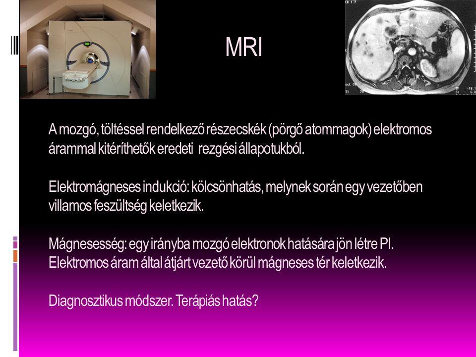 MRI A mozgó, töltéssel rendelkező részecskék (pörgő atommagok) elektromos árammal kitéríthetők eredeti rezgési állapotukból.